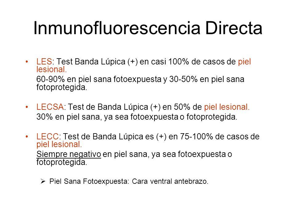 Inmunofluorescencia Directa