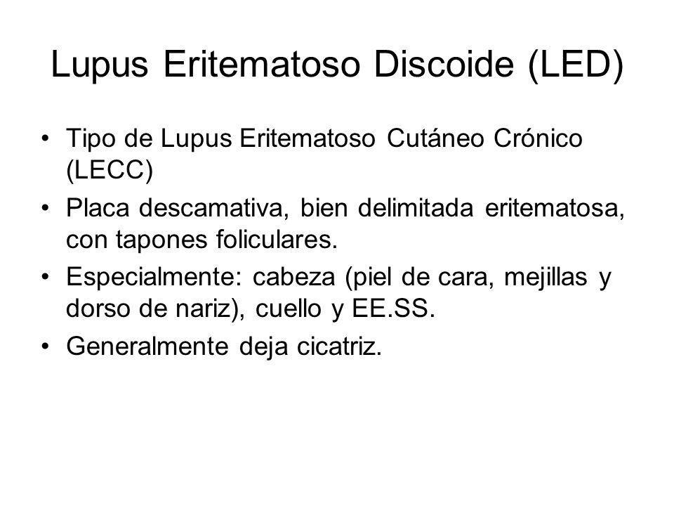 Lupus Eritematoso Discoide (LED)