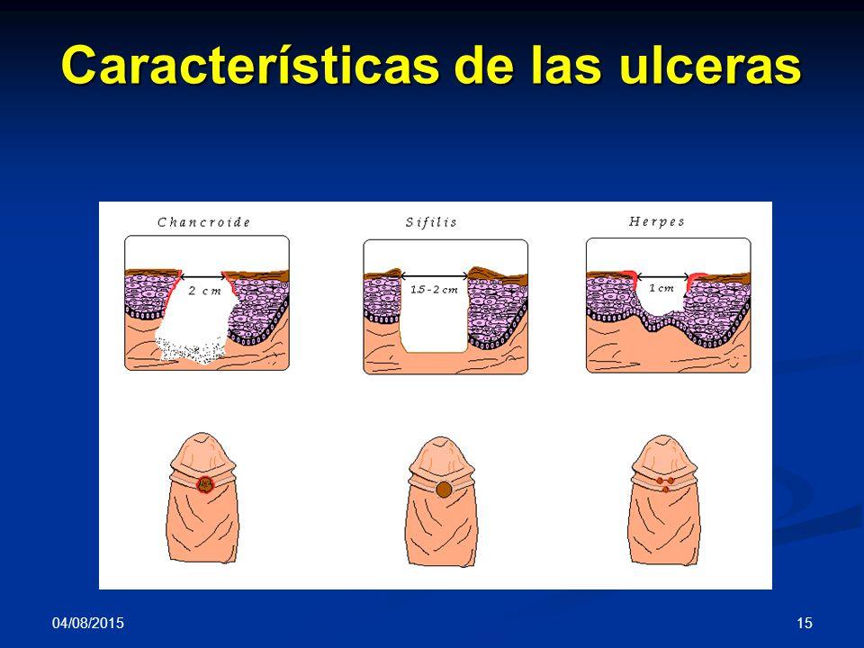 Características de las ulceras