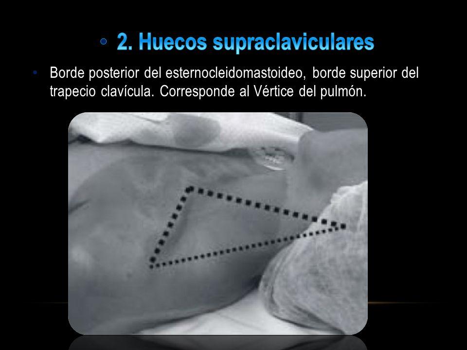 2. Huecos supraclaviculares