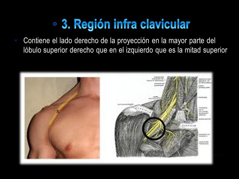 3. Región infra clavicular
