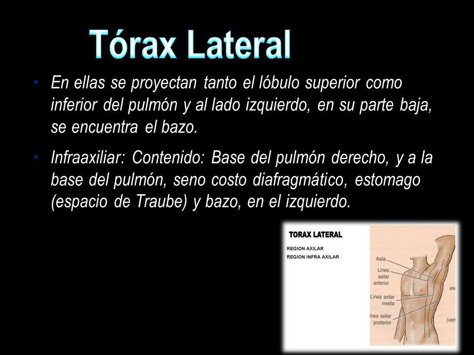 Tórax Lateral En ellas se proyectan tanto el lóbulo superior como inferior del pulmón y al lado izquierdo, en su parte baja, se encuentra el bazo.
