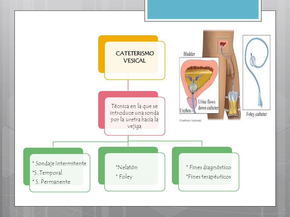 Técnica en la que se introduce una sonda por la uretra hacia la vejiga
