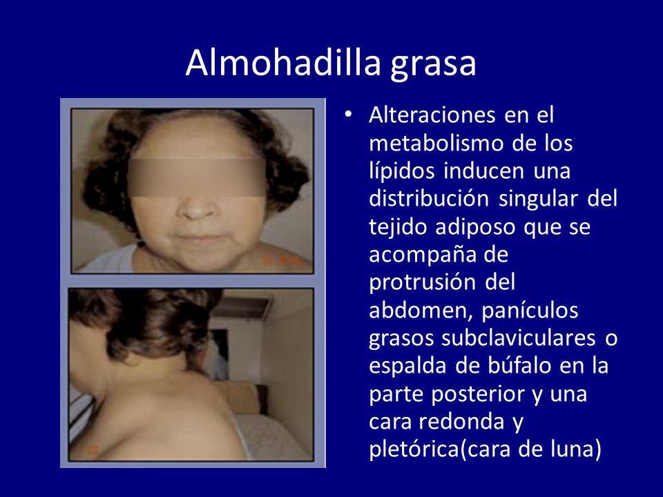 Almohadilla de grasa dorsocervical Definicin infoSIDA
