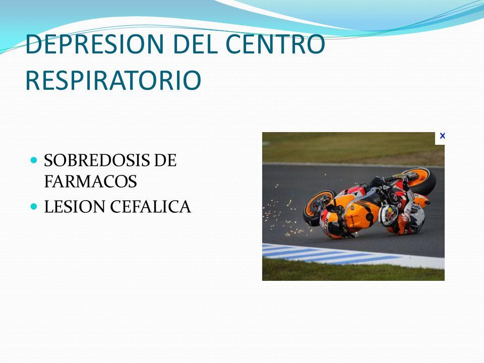 DEPRESION DEL CENTRO RESPIRATORIO
