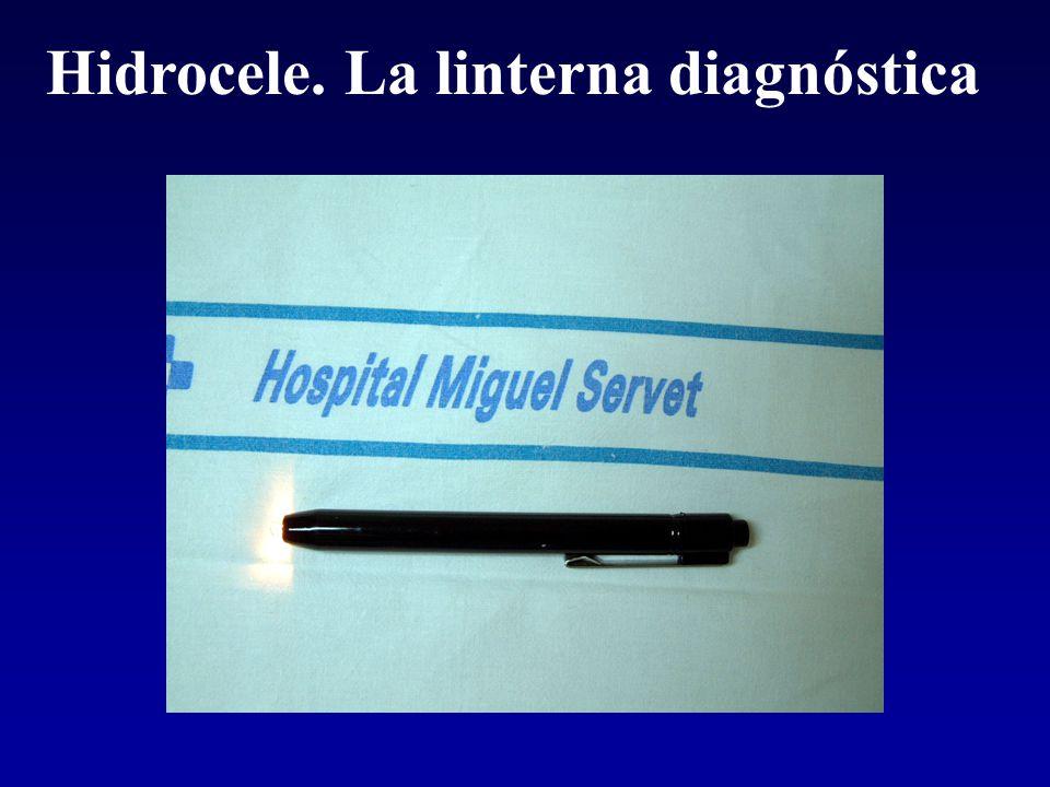 Hidrocele. La linterna diagnóstica