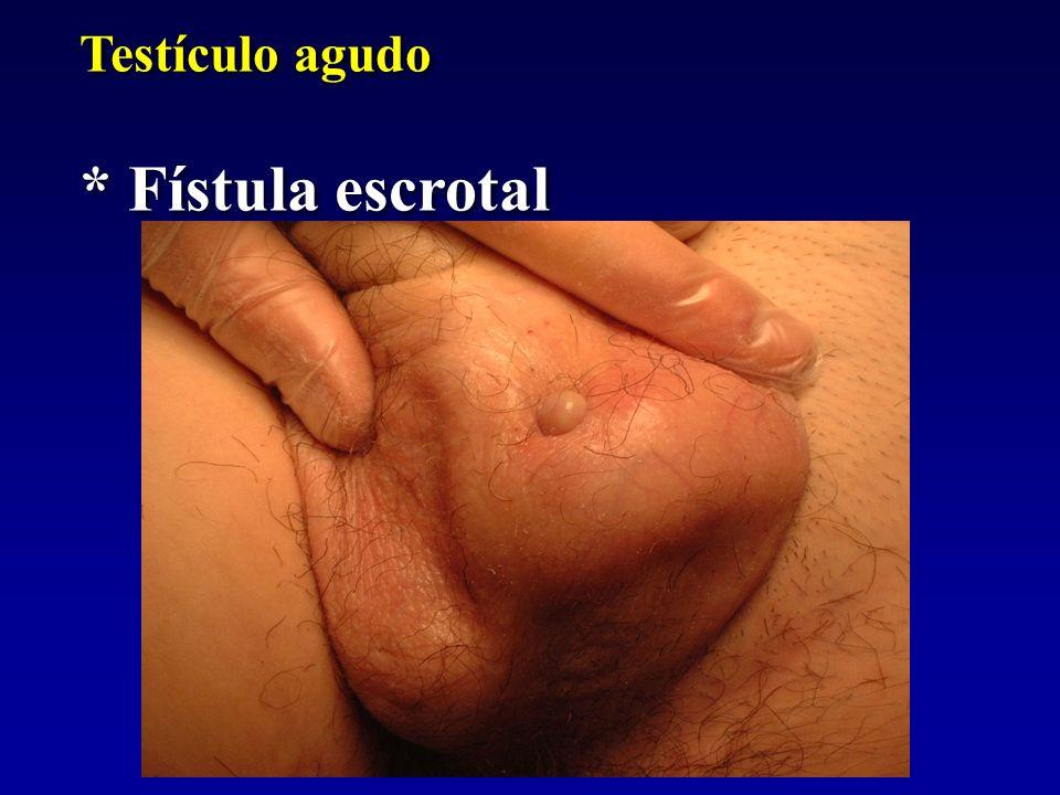 Testículo agudo * Fístula escrotal