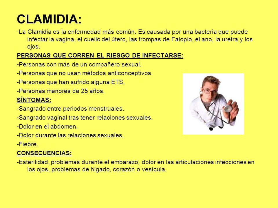 CLAMIDIA: