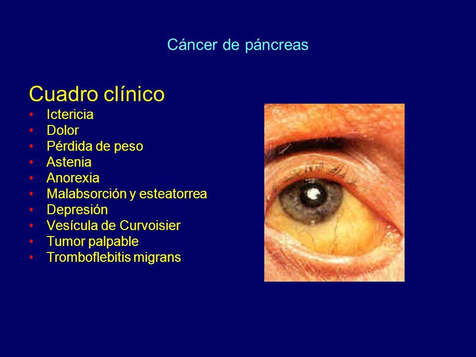 Cuadro clínico Cáncer de páncreas Ictericia Dolor Pérdida de peso