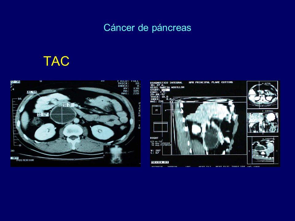 Cáncer de páncreas TAC