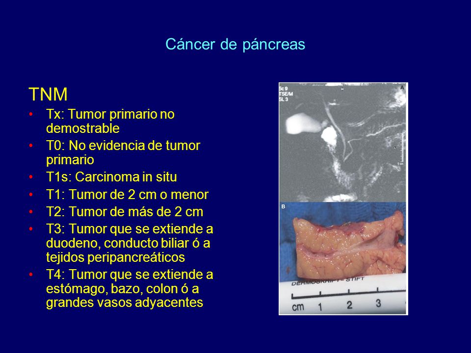 TNM Cáncer de páncreas Tx: Tumor primario no demostrable