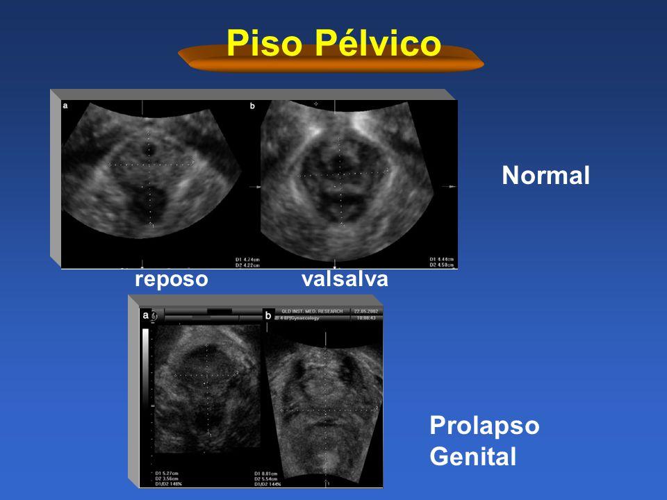 Prolapso vaginal cobaya uterina