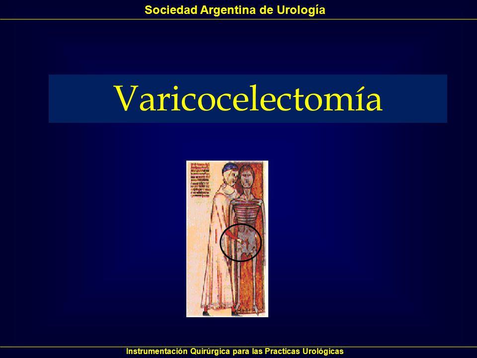 Varicocelectomía Sociedad Argentina de Urología