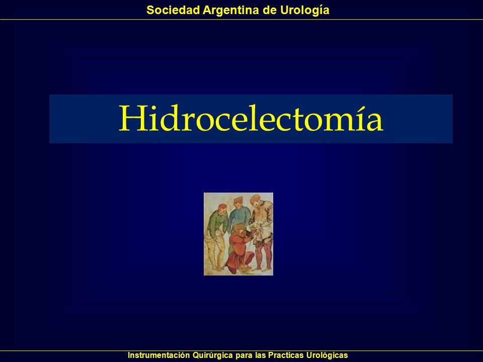 Hidrocelectomía Sociedad Argentina de Urología