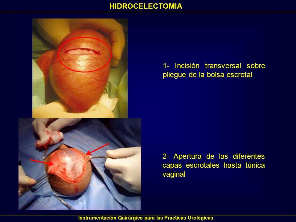 Instrumentación Quirúrgica para las Practicas Urológicas