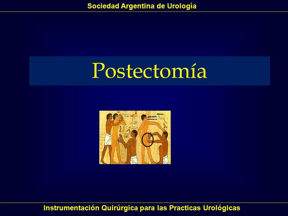 Postectomía Sociedad Argentina de Urología