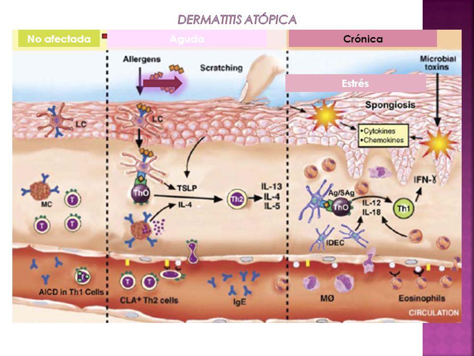 Dermatitis atópica No afectada Aguda Crónica Estrés