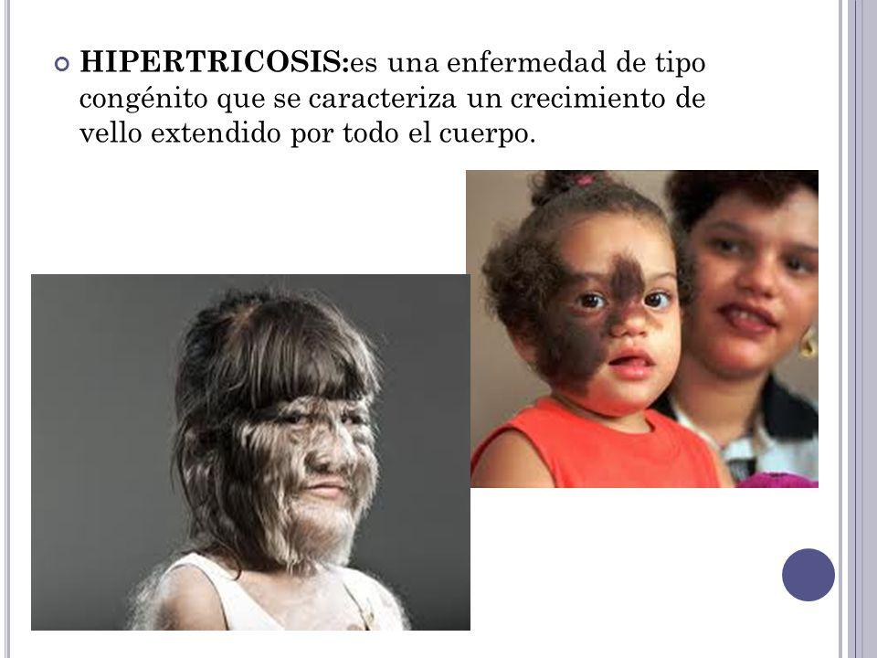 HIPERTRICOSIS:es una enfermedad de tipo congénito que se caracteriza un crecimiento de vello extendido por todo el cuerpo.
