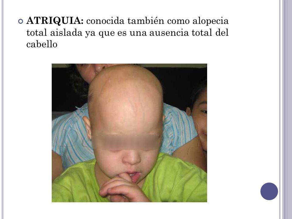 ATRIQUIA: conocida también como alopecia total aislada ya que es una ausencia total del cabello