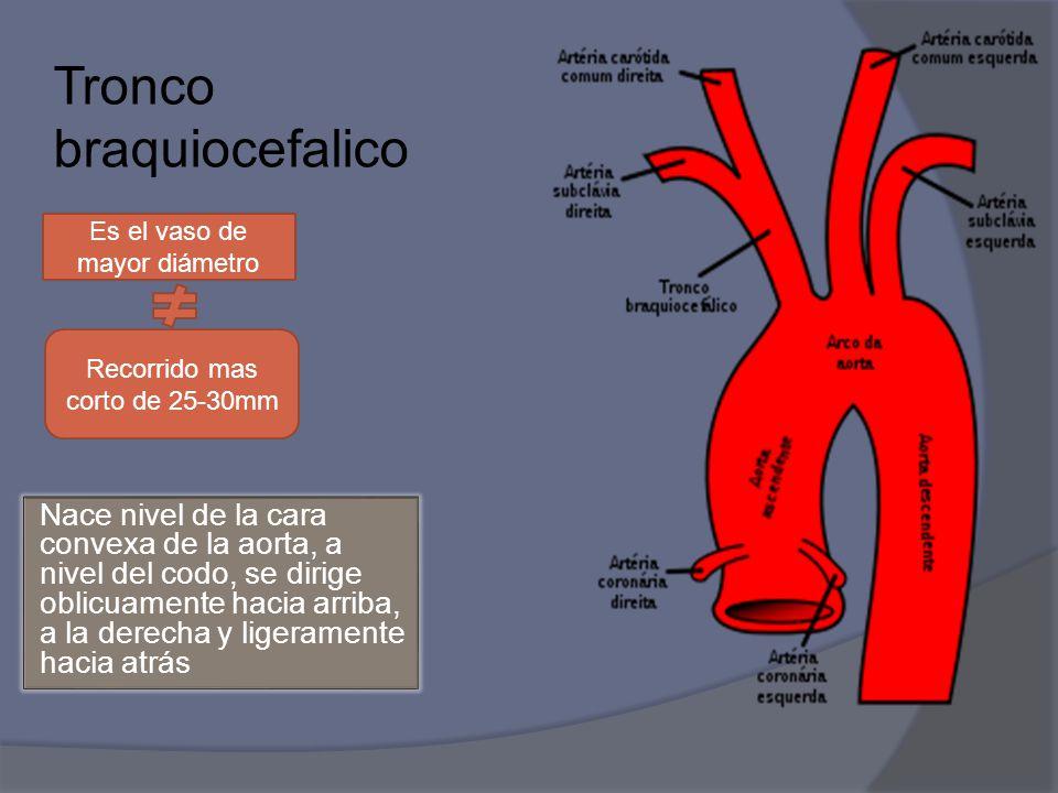 Lujo Braquiocefálico Viñeta - Anatomía de Las Imágenesdel Cuerpo ...