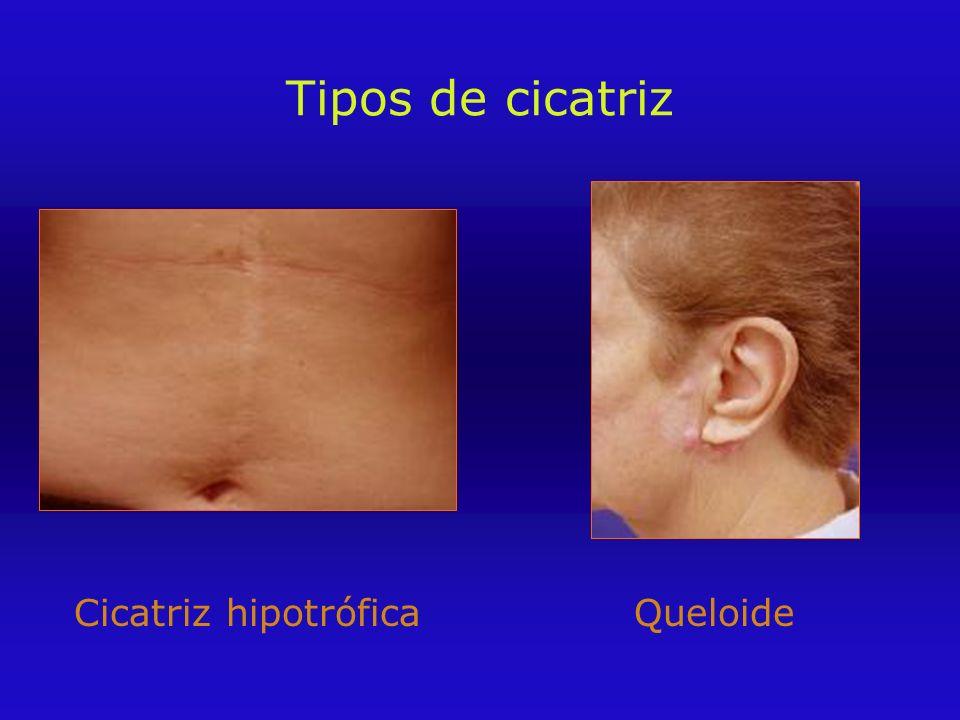 Tipos de cicatriz Cicatriz hipotrófica Queloide