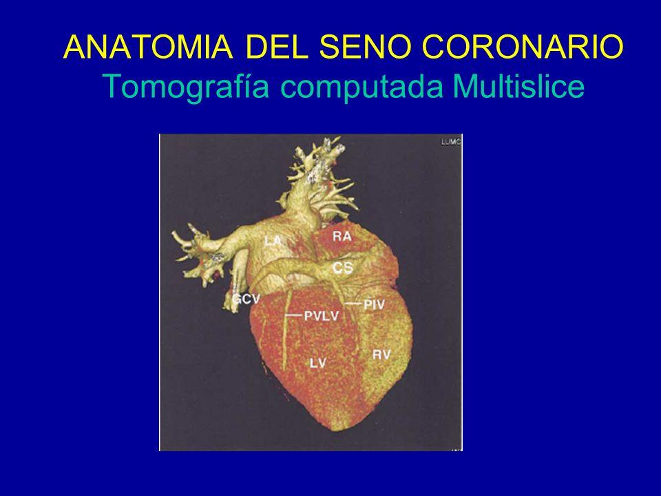 Increíble La Anatomía Del Seno Cavernoso Powerpoint Inspiración ...