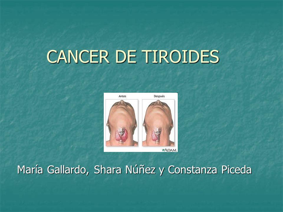 CANCER DE TIROIDES María Gallardo, Shara Núñez y Constanza Piceda