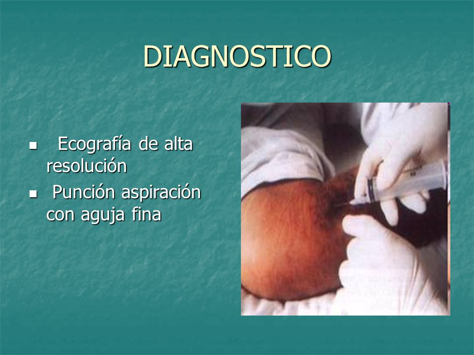 DIAGNOSTICO Ecografía de alta resolución