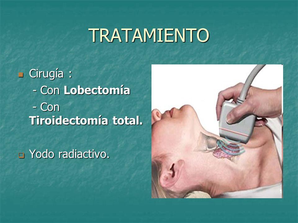 TRATAMIENTO Cirugía : - Con Lobectomía - Con Tiroidectomía total.