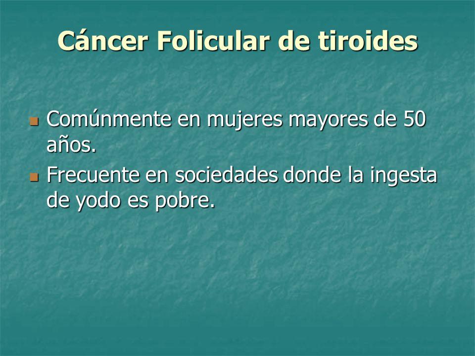 Cáncer Folicular de tiroides