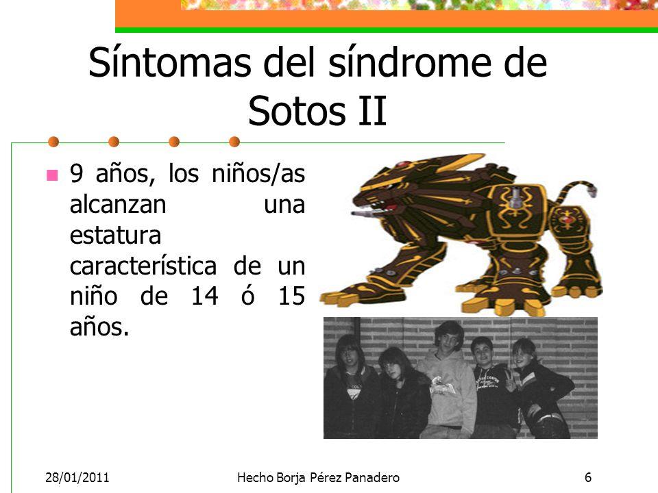 Síntomas del síndrome de Sotos II