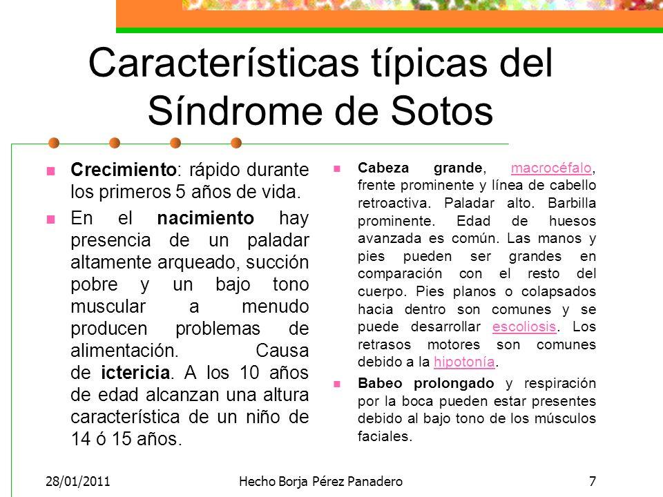 Características típicas del Síndrome de Sotos