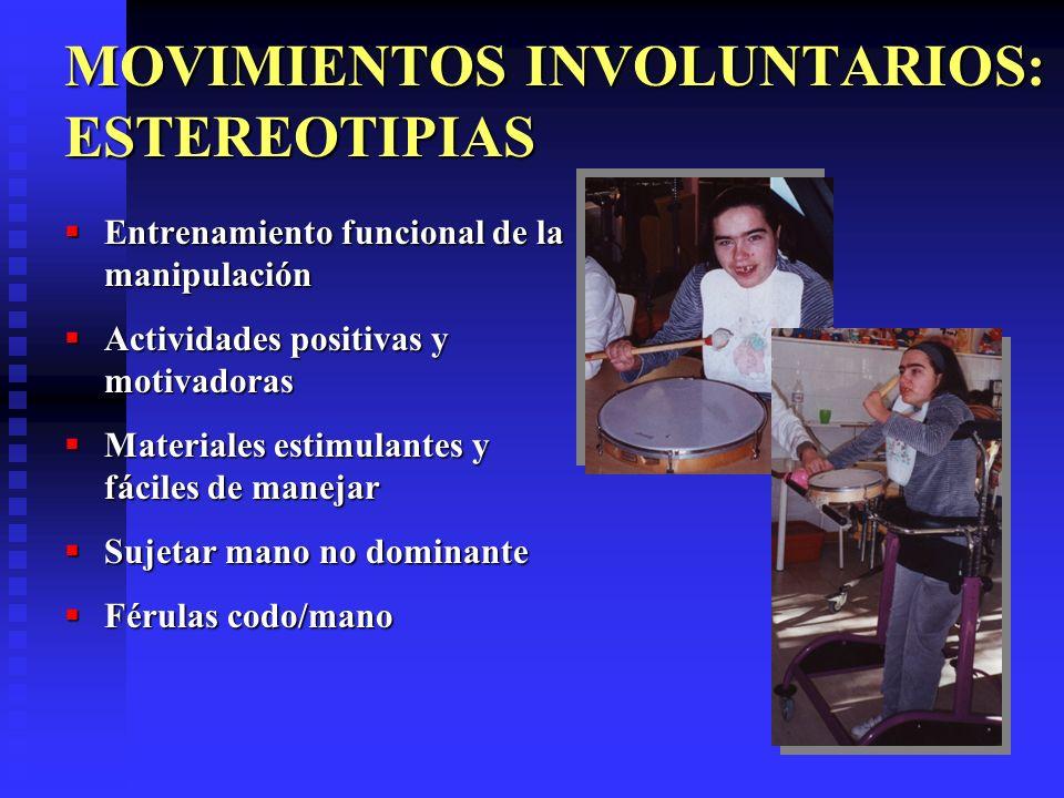 MOVIMIENTOS INVOLUNTARIOS: ESTEREOTIPIAS