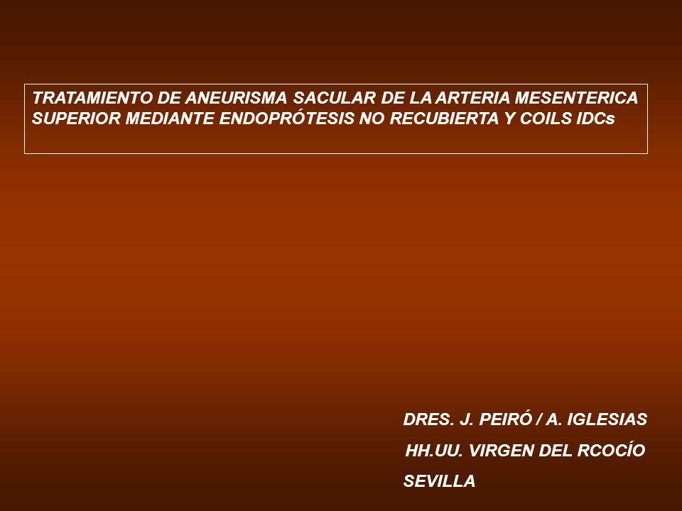 TRATAMIENTO DE ANEURISMA SACULAR DE LA ARTERIA MESENTERICA SUPERIOR MEDIANTE ENDOPRÓTESIS NO RECUBIERTA Y COILS IDCs
