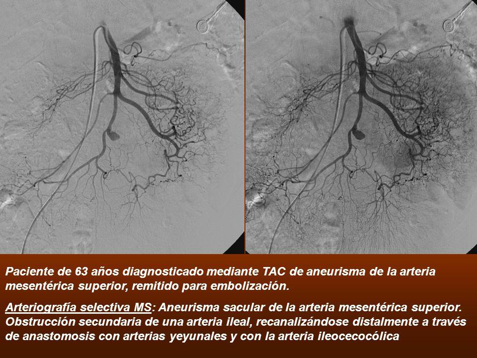 Paciente de 63 años diagnosticado mediante TAC de aneurisma de la arteria mesentérica superior, remitido para embolización.