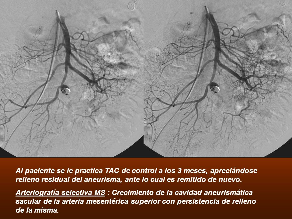 Al paciente se le practica TAC de control a los 3 meses, apreciándose relleno residual del aneurisma, ante lo cual es remitido de nuevo.