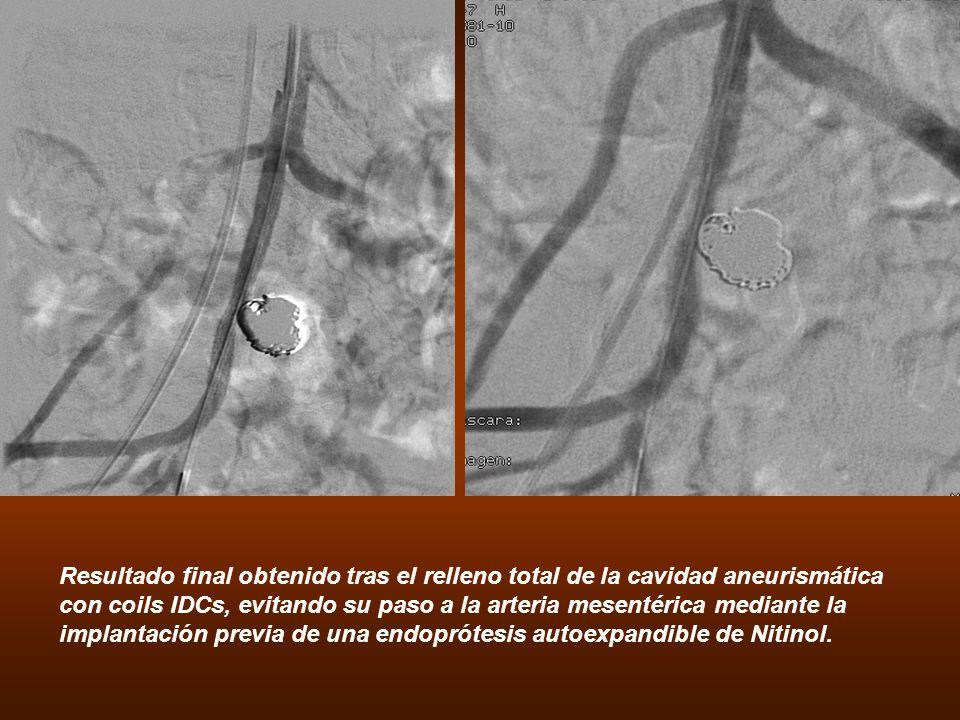 Resultado final obtenido tras el relleno total de la cavidad aneurismática con coils IDCs, evitando su paso a la arteria mesentérica mediante la implantación previa de una endoprótesis autoexpandible de Nitinol.