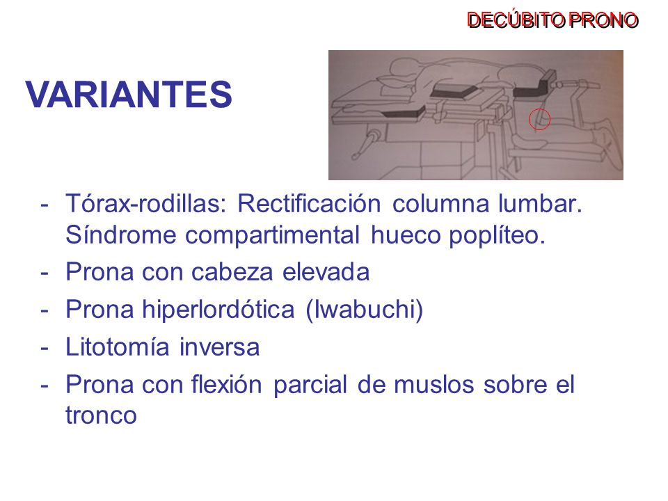 DECÚBITO PRONOVARIANTES. Tórax-rodillas: Rectificación columna lumbar. Síndrome compartimental hueco poplíteo.