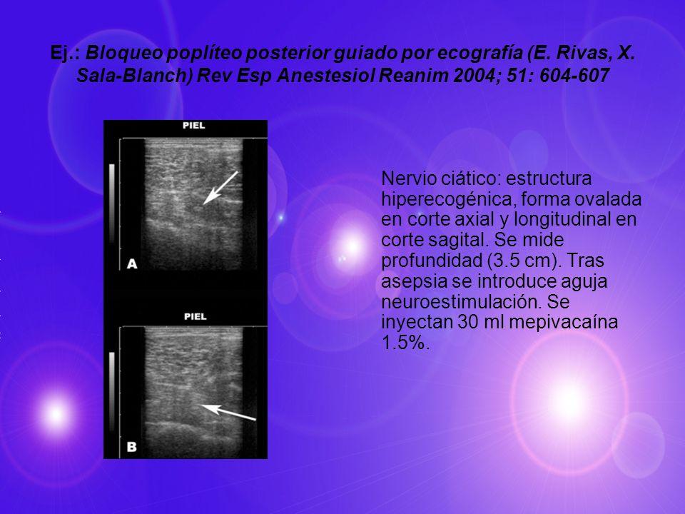 Ej. : Bloqueo poplíteo posterior guiado por ecografía (E. Rivas, X