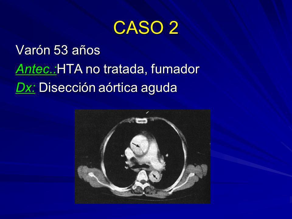 CASO 2 Varón 53 años Antec.:HTA no tratada, fumador