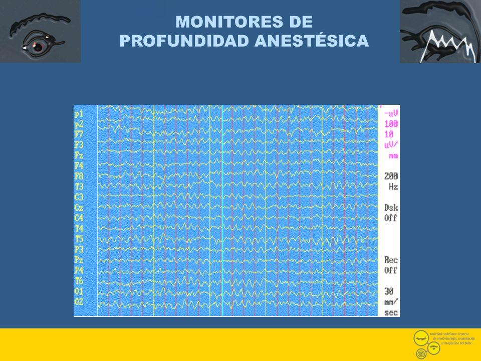 MONITORES DE PROFUNDIDAD ANESTÉSICA
