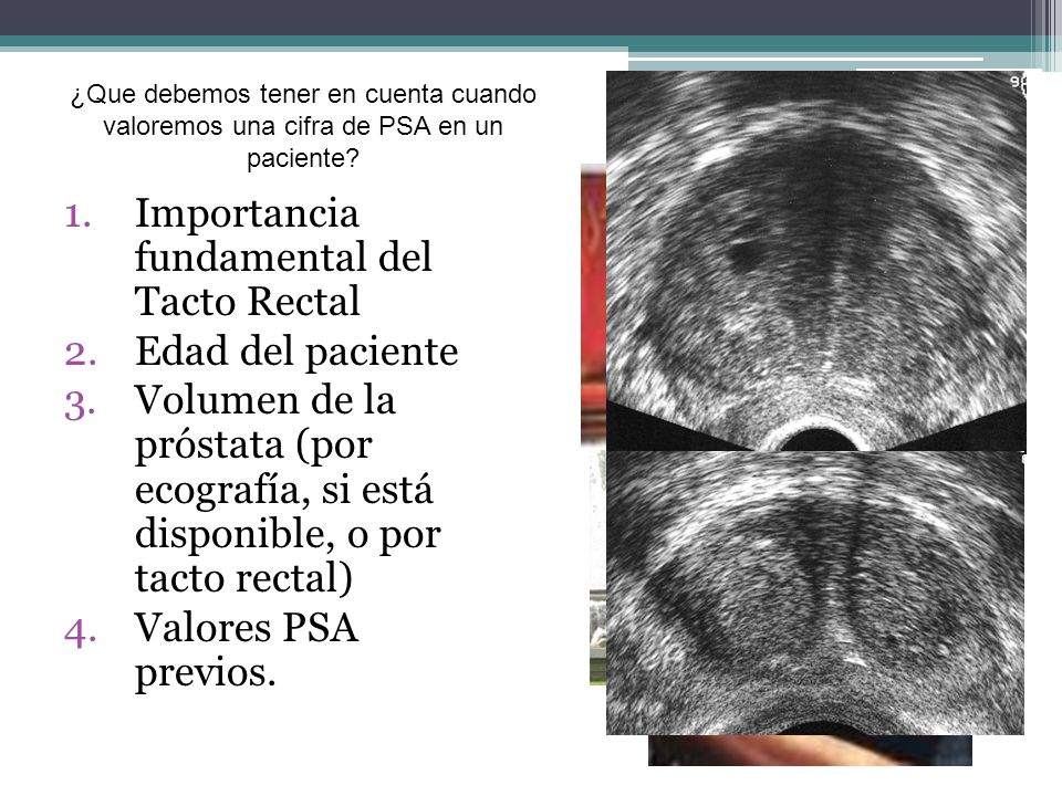 Importancia fundamental del Tacto Rectal