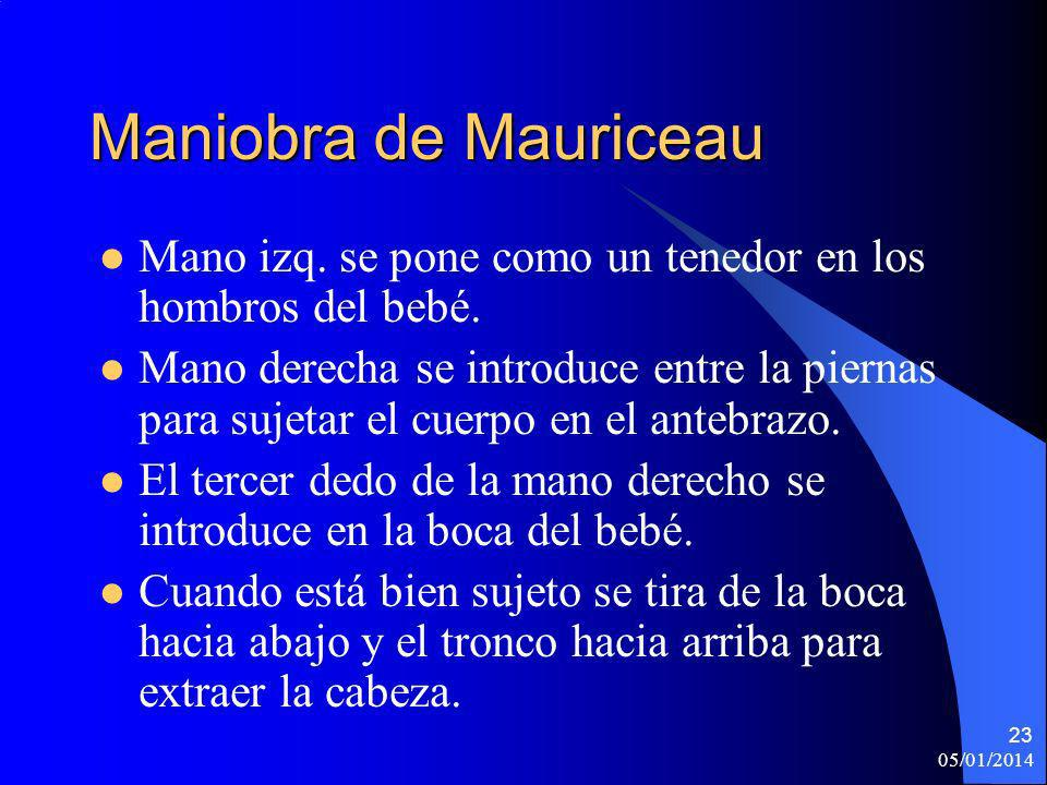 Maniobra de Mauriceau Mano izq. se pone como un tenedor en los hombros del bebé.