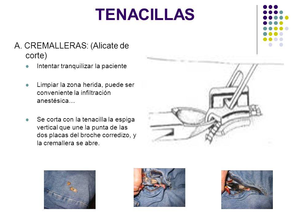 TENACILLAS A. CREMALLERAS: (Alicate de corte)