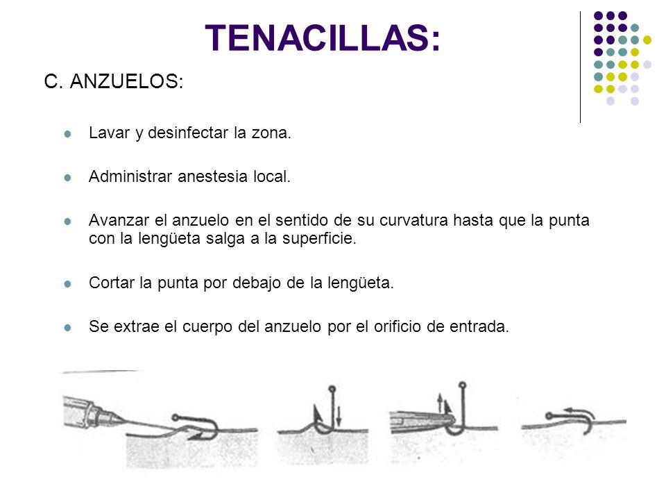 TENACILLAS: C. ANZUELOS: Lavar y desinfectar la zona.