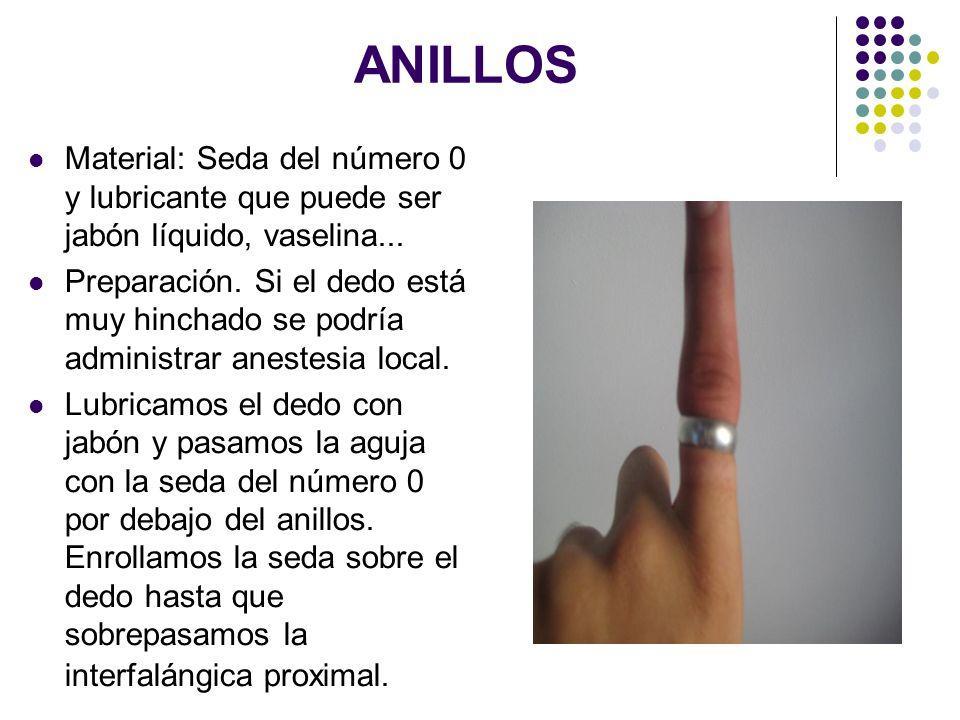 ANILLOS Material: Seda del número 0 y lubricante que puede ser jabón líquido, vaselina...