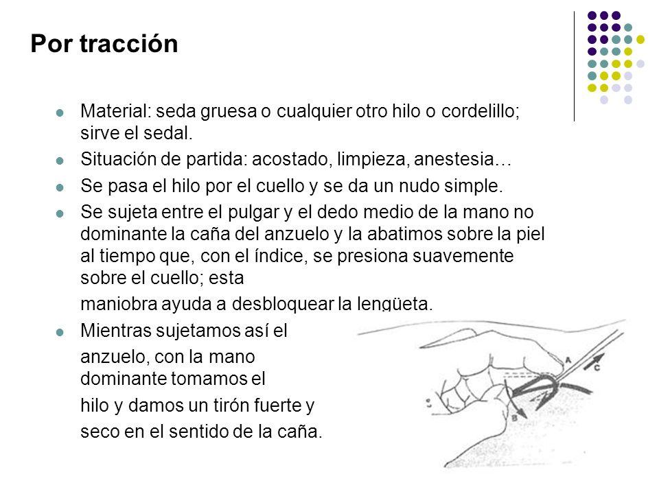 Por tracción Material: seda gruesa o cualquier otro hilo o cordelillo; sirve el sedal. Situación de partida: acostado, limpieza, anestesia…