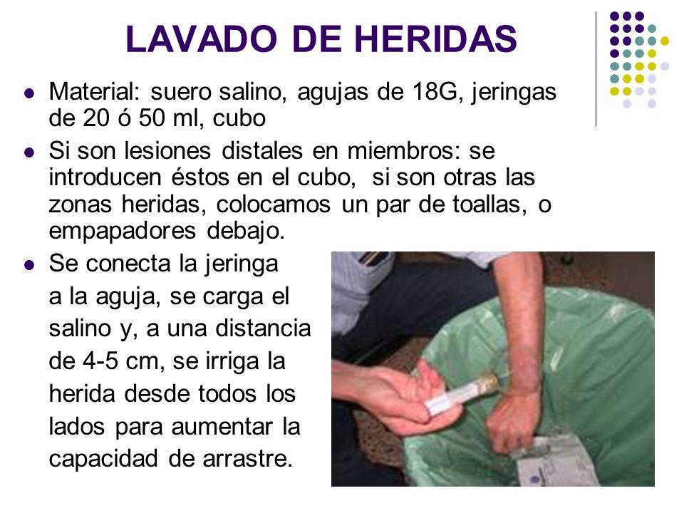 LAVADO DE HERIDAS Material: suero salino, agujas de 18G, jeringas de 20 ó 50 ml, cubo.