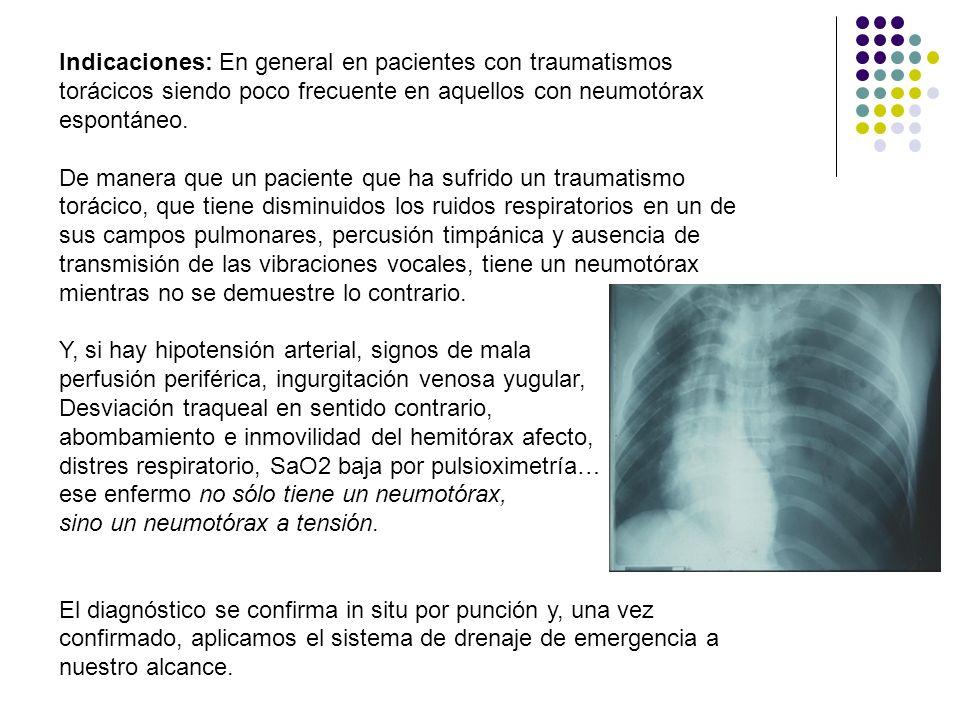 Indicaciones: En general en pacientes con traumatismos torácicos siendo poco frecuente en aquellos con neumotórax espontáneo.