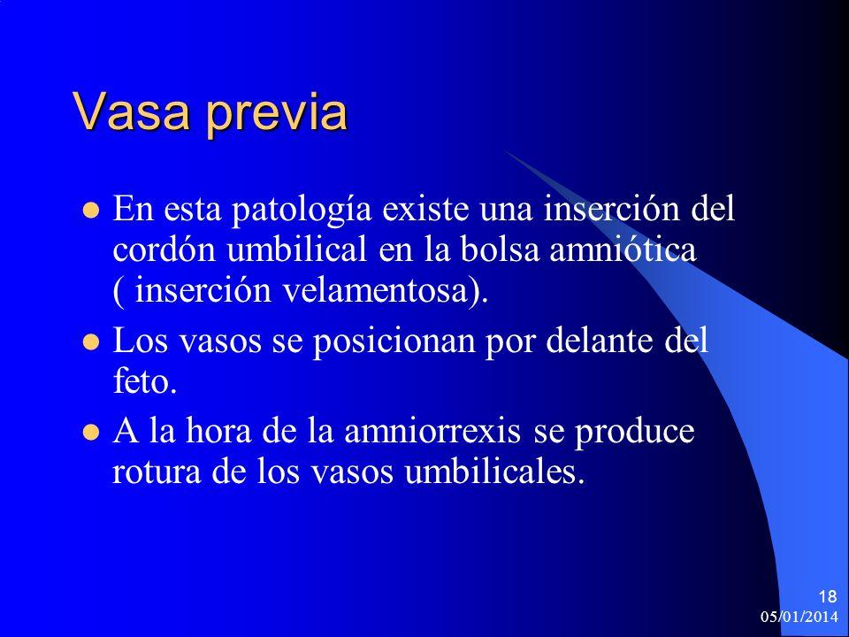 Vasa previaEn esta patología existe una inserción del cordón umbilical en la bolsa amniótica ( inserción velamentosa).